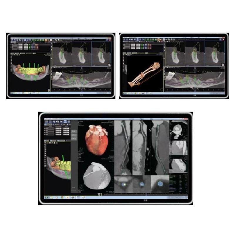 43 inch Smart Medical Kiosk Monitor